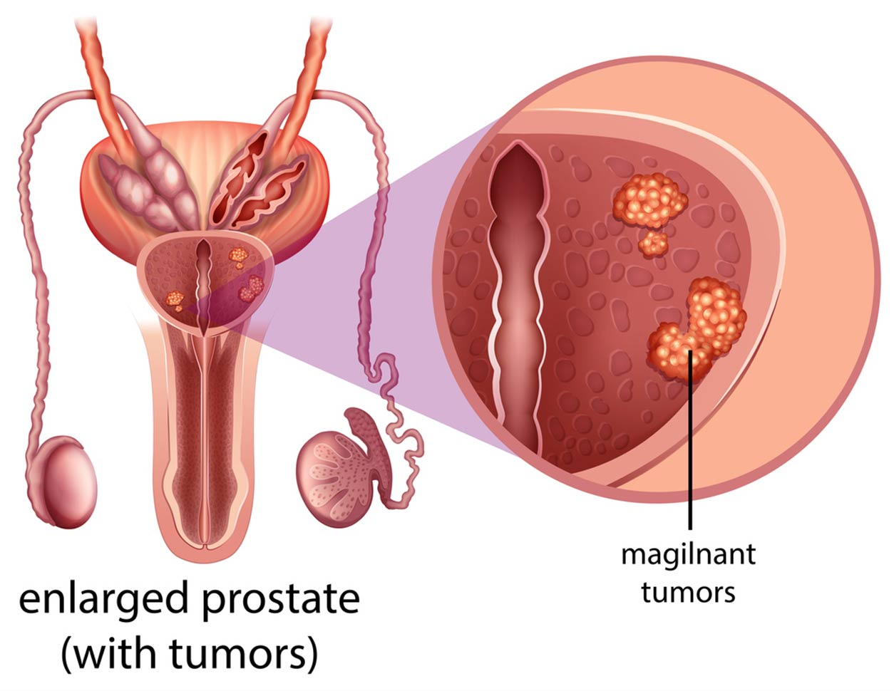 Prostate Cancer diagram